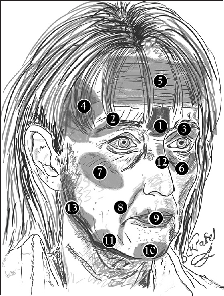 Figure 2: Sites where fillers may be usefully administered. (1) Frown lines; (2) Brow; (3) Superior sulcus; (4) Temporal fossa; (5) Forehead; (6) Nasojugal and malar grooves; (7) Malar eminence; (8) Nasolabial and mandibulolabil folds; (9) Lips; (10) Mentum, (11) Prejowl sulcus; (12) Nasal dorsum; (13) Jawline