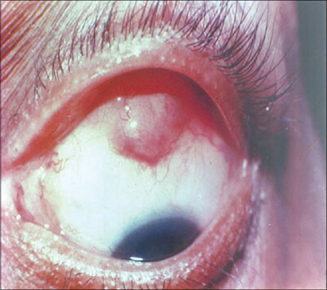 Figure 6: Subconjunctival mass with posterior extension