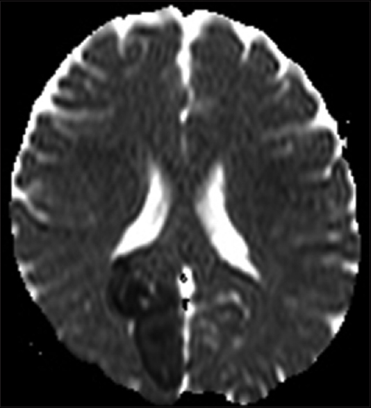 Figure 1: Magnetic resonance imaging picture