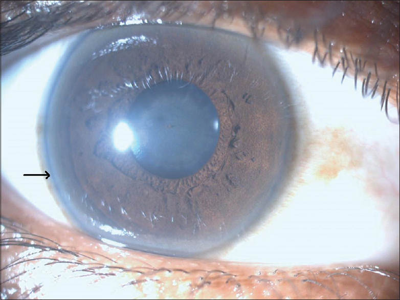 Kayser Fleischer Ring In The Right Eye Of Our Patient