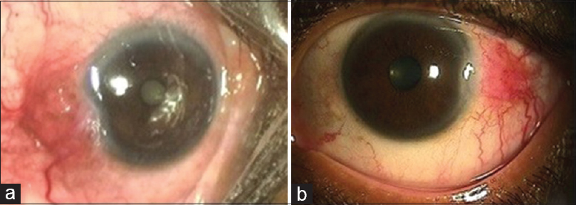Management of isolated subconjunctival hemangioma masquerading as