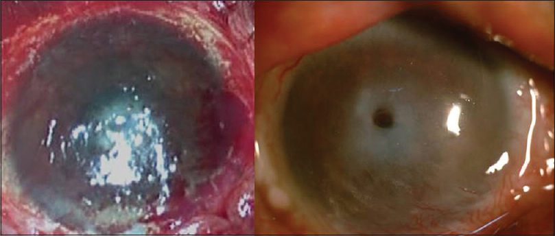 Figure 4: Immediate (left) and 3 months' (right) postoperative image showing central corneal thinning with scar