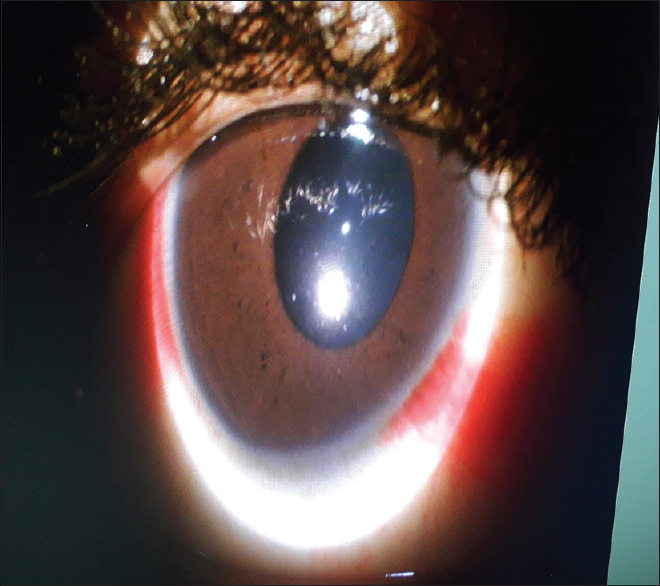 Figure 4: Right eye at second follow-up visit