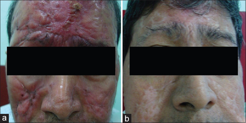 Figure 1: (a) Clinical photograph of the patient showing maculopapulo-nodular lesions over the face. (b) Posttreatment clinical photograph showing resolution of facial lesions with eventual scarring