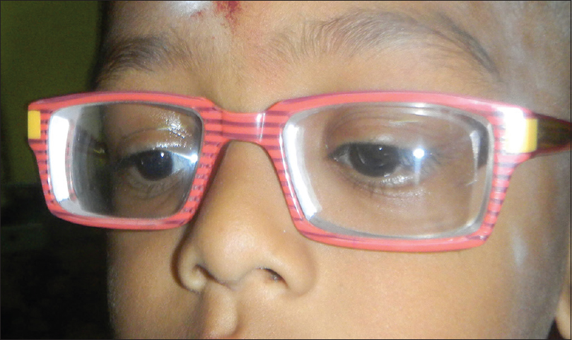 Figure 18: Eight-year-old child having -18D both eyes. underwent posterior scleral support operation and has good visual improvement. Waiting for low power intraocular lens