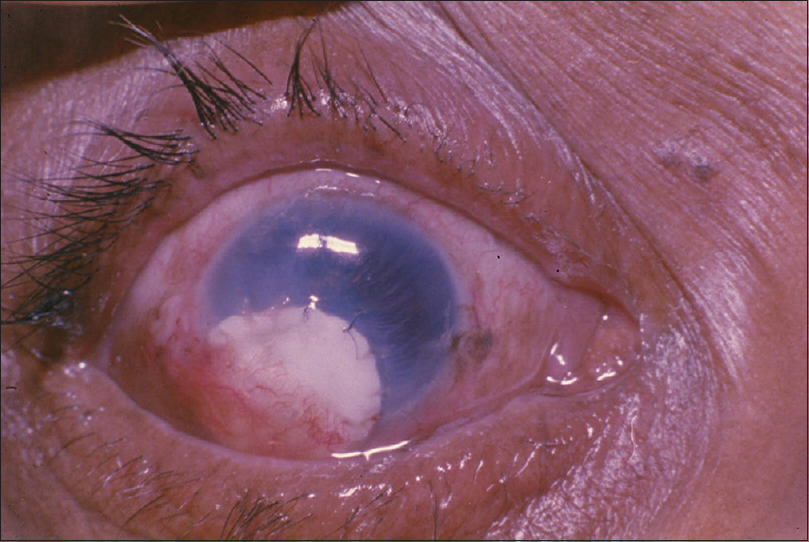 Figure 3: Note the neo - Vascularisation over the sclera after 1 month