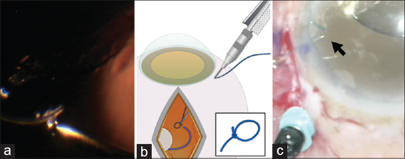 "Figure 1: Complete vitrectomy is performed and all vitreous strands and capsular remnants around the intraocular lens haptic are cleared (a). For the sutured technique, an intraocular forceps is used to carry a ""lasso"" knot (inset, b) into the vitreous cavity and snare the intraocular lens haptic (b). For the sutureless technique, intraocular forceps is used to grasp the haptic tip and externalize the haptic (arrow, 1c)"