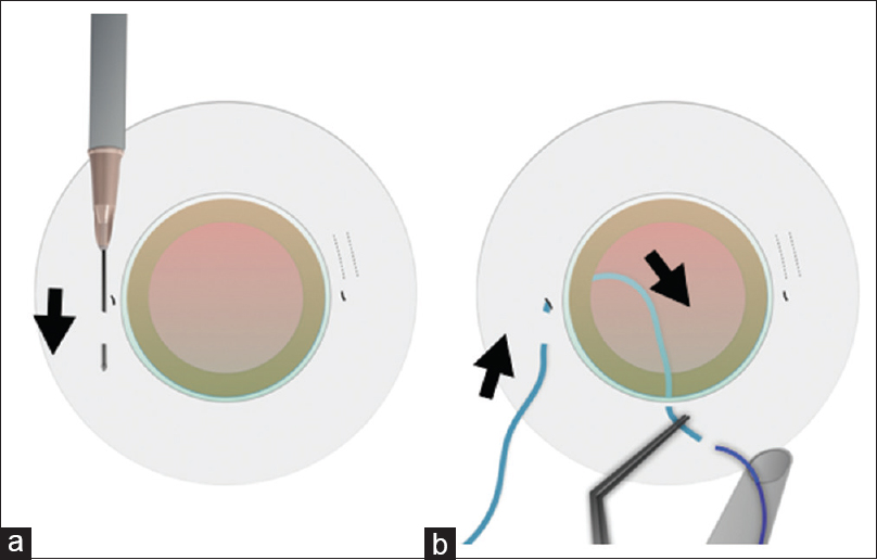 Figure 10: Partial thickness scleral tunnels for scleral-fixated intraocular lenses haptics are created using a needle (arrow, a). The scleral fixation guide is passed in a retrograde manner through the scleral tunnels, into the eye through the sclerotomy, and out of the eye through the corneal incision (arrows, b). The leading haptic of intraocular lens is threaded into the pliable guide