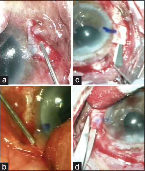 Figure 5: To create the partial thickness scleral pockets parallel to the limbus, 23-gauge trocars (a) or 23- or 26-gauge needles (b) may be used. Partial thickness scleral flaps are created using a crescent blade (c). The lateral ends can be opened in a controlled manner by the use of Westcott scissors (d)