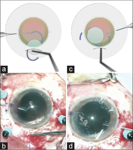 "Figure 6: As the leading haptic is introduced into the eye, its tip is grasped with an intraocular forceps (a and b). Intraocular exchange with ""handshake technique"" is performed by passing the trailing haptic from one forceps to another before exteriorization (c and d)"