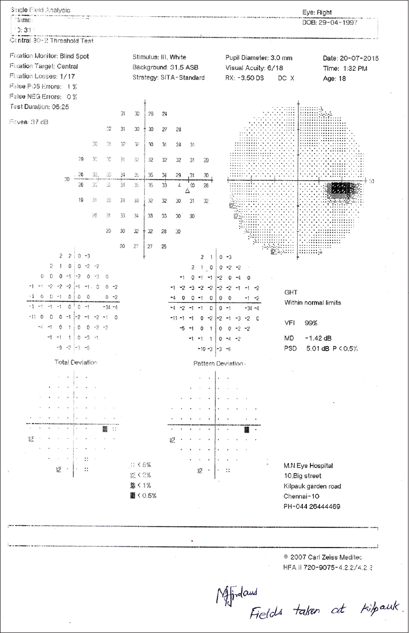 Figure 2: Picture depicting visual fields of right eye