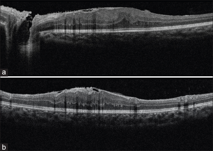 Figure 3: Optical coherence tomography of the left eye. Epiretinal membrane, hyperreflective foci in inner retina and disorganization of retina seen in (a and b)