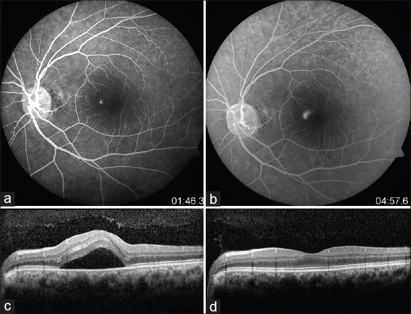 Figure 1: (a and b) Shows a juxtafoveal smokestack leak. (c) SD-OCT at baseline reveals serous macular detachment. (d) SD-OCT reveals complete resolution of subretinal fluid at the 1<sup>st</sup> month follow-up