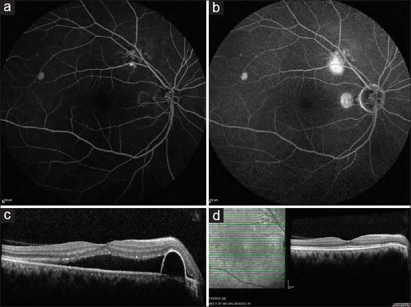 Figure 2: (a and b) Shows an extrafoveal leak and a pigment epithelial detachment, just temporal to the fovea. (c) SD-OCT at baseline reveals serous macular detachment as well as pigment epithelial detachment. (d) SD-OCT reveals complete resolution of subretinal fluid as well as pigment epithelial detachment at the 1<sup>st</sup> month follow-up