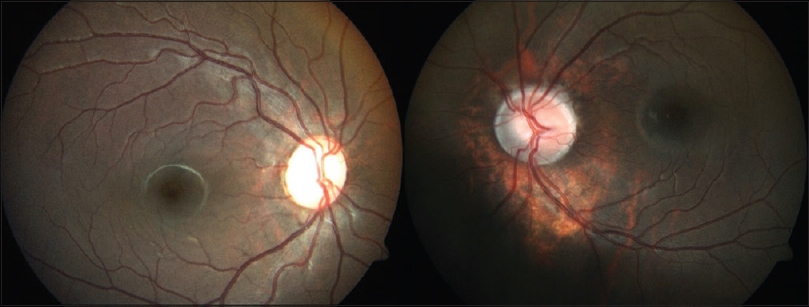 Figure 5: Fundus photograph of both eyes: left eye showing tilted disc with peripapillary stippling