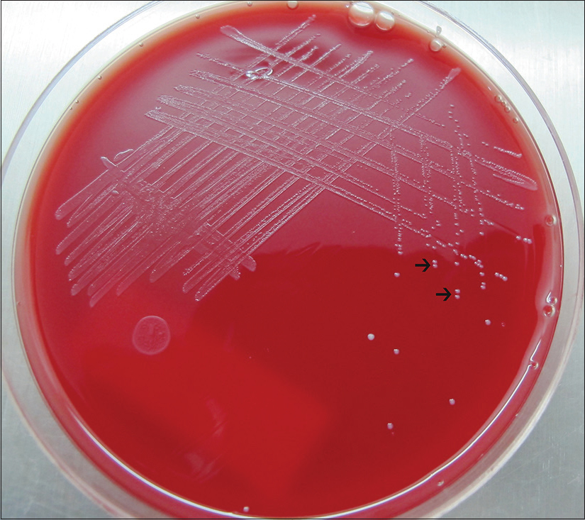 Figure 3: Small cream or white, smooth, entire γ-hemolytic colony was grown in 5% sheep blood agar at 37°C suggestive of <i>Enterococcus faecalis</i>